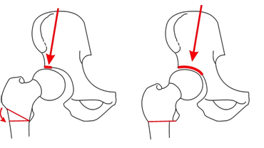 Osteotomia Valgizante