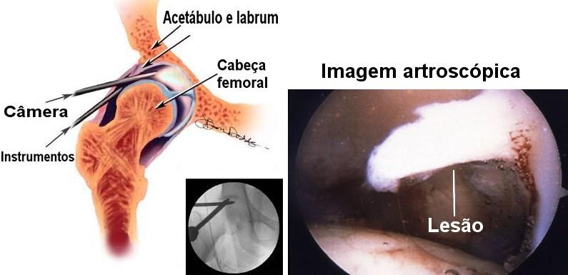 Artroscopia do quadril - imagem artroscópica