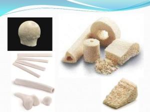 Enxertos ósseos
