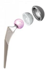 Implante não cimentado moderno
