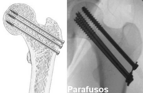 Fratura do colo do fêmur fixada com parafusos percutâneos