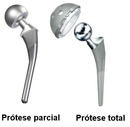 Tipos de prótese de quadril