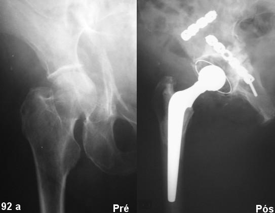 Artroplastia em fratura de acetábulo aguda - tratamento de exceção