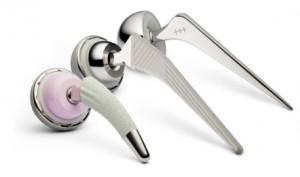 Exemplos de implantes modernos