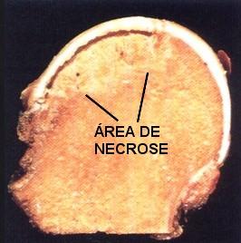 Cabeça femoral, corte evidenciando área de necrose.