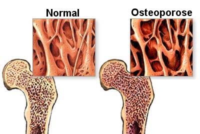 Osteoporose - quadril
