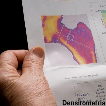 Osteoporose - densitometria.