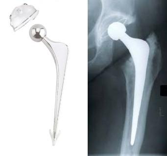 Resultado de imagem para prótese de titânio