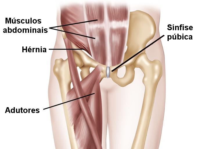 Músculos envolvidos na pubalgia.
